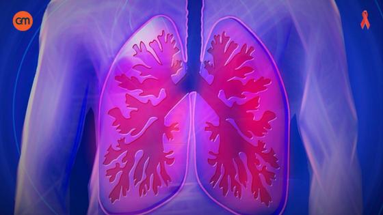 WWorld COPD Day - Buy Medicine Online, Online Pharmacy Noida, Online Medicines, Buy Medicine Online Noida, Nearby Pharmacy, Purchase Medicine Online, GoMedii