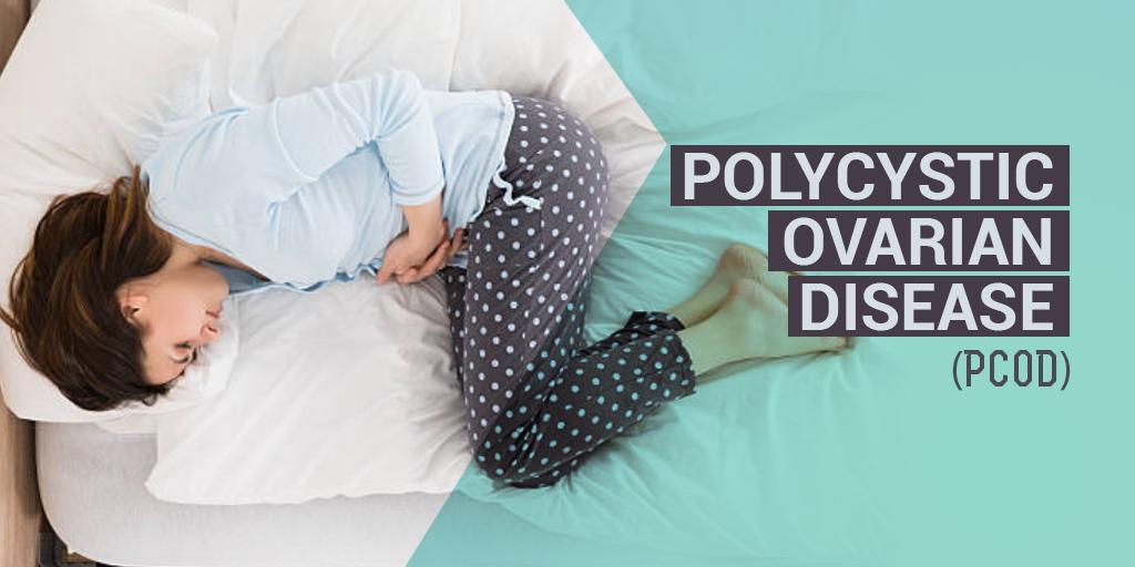 Polycystic Ovarian Disease, Buy Medicine Online, Online Pharmacy Noida, Online Medicines, Buy Medicine Online Noida, Nearby Pharmacy, Purchase Medicine Online, GoMedii