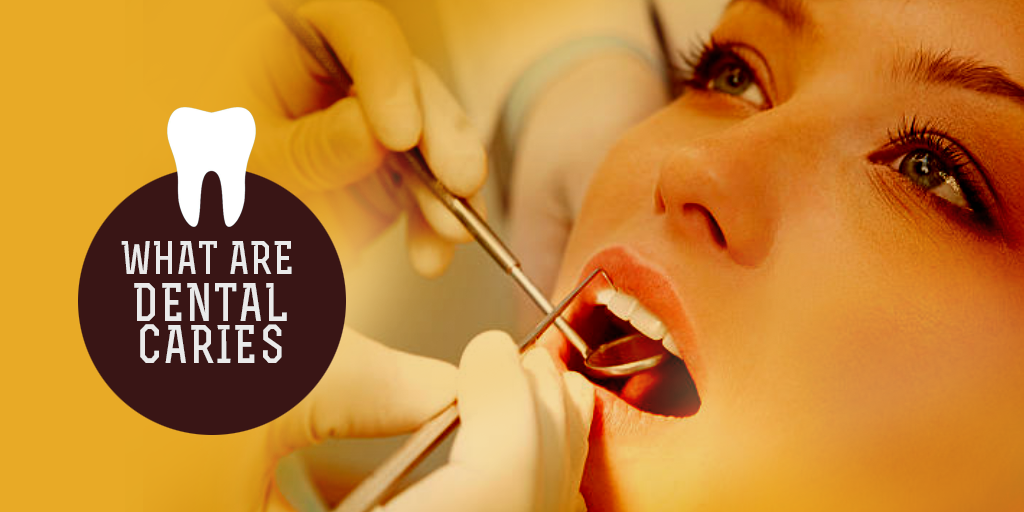 What are Dental Caries, Buy Medicine Online, Online Pharmacy Noida, Online Medicines, Buy Medicine Online Noida, Nearby Pharmacy, Purchase Medicine Online, GoMedii