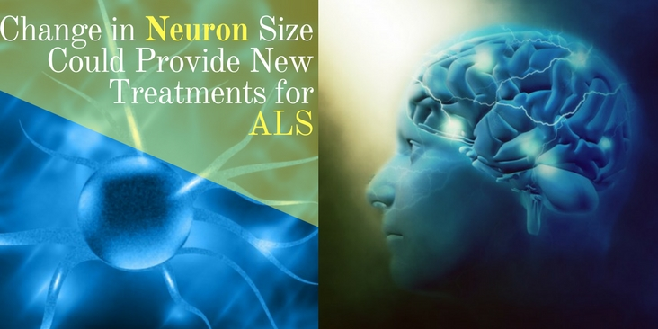 amyotrophic lateral sclerosis - Change in Neuron Size Could Provide New Treatments for ALS, Buy Medicine Online, Online Pharmacy Noida, Online Medicines, Buy Medicine Online Noida, Nearby Pharmacy, Purchase Medicine Online, GoMedii