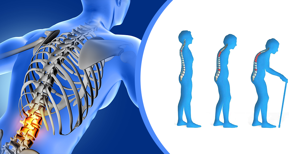 What is Osteoporosis?, Buy Medicine Online, Online Pharmacy Noida, Online Medicines, Buy Medicine Online Noida, Nearby Pharmacy, Purchase Medicine Online, GoMedii