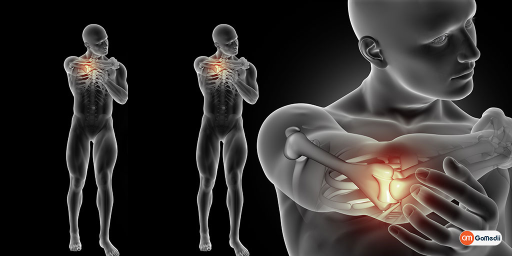 Osteonecrosis: Tackle This Bone and Muscle Disorder