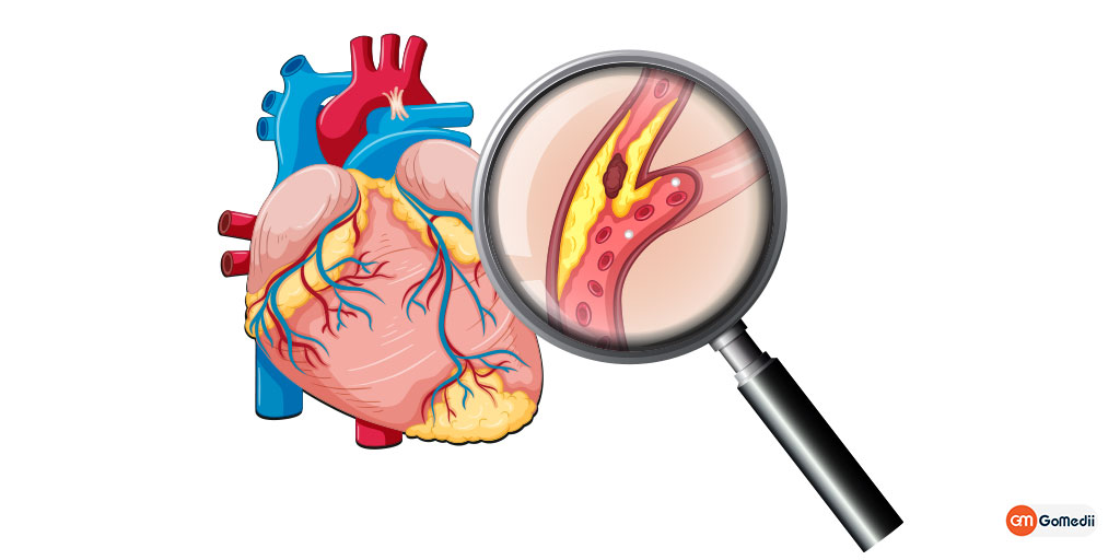 Coronary Artery Disease: Symptoms, Causes, Treatment & Prevention, Order Medicine Online, Online Pharmacy India, Medicine Store, Online Medical Store, Purchase Medicine Online, Medicine Online, Online Pharmacy Noida, Online Chemist Crossing Republic, Online Medicines, Buy Medicine Online India, Online Pharmacy Gaur City