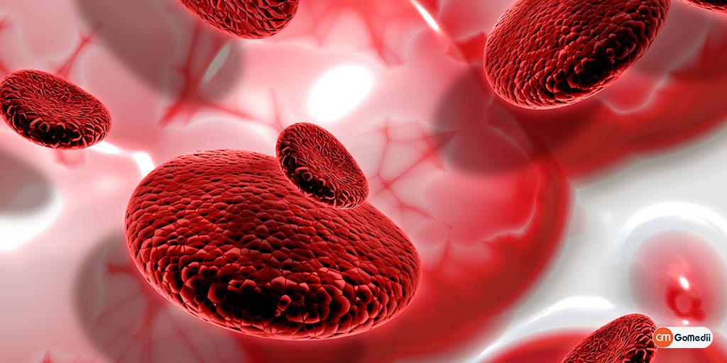 Thalassemia: A Rare Blood Disorder