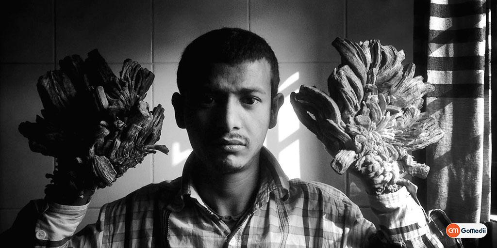 'Tree Man': Bangladeshi Man Turning into Tree Returns to Hospital