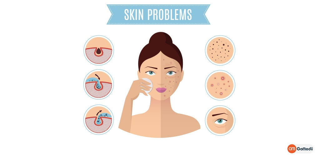 11 Most Helpful Skin Care Tips To Make it Healthy & Young