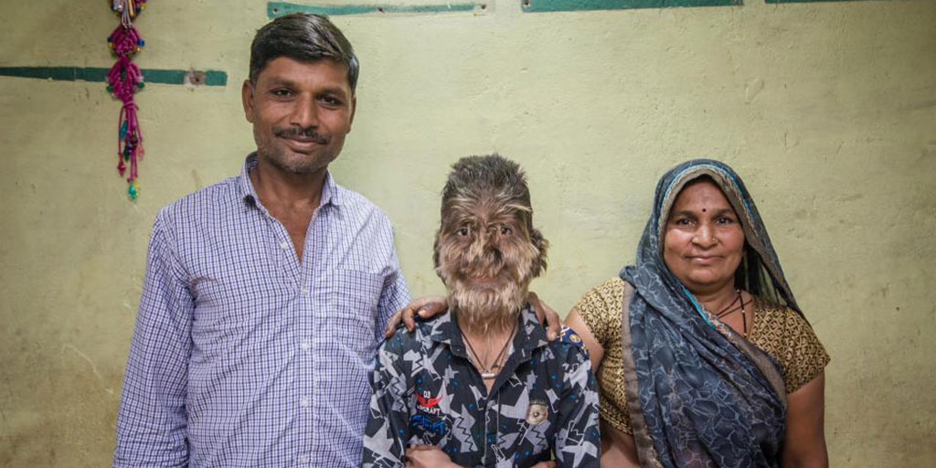 Hypertrichosis: A Rare Werewolf Syndrome