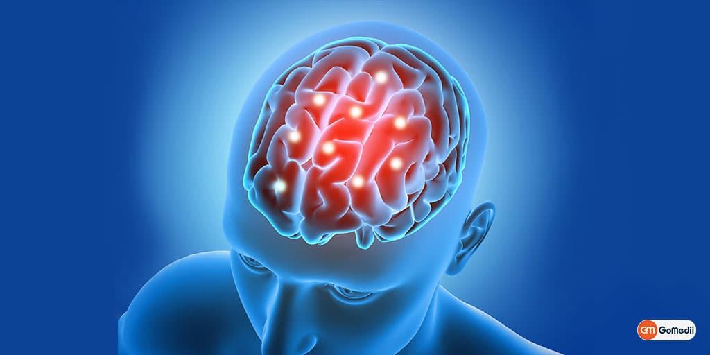 Epilepsy Treatment : Do You Need an Epilepsy Specialist (Neurologist)?