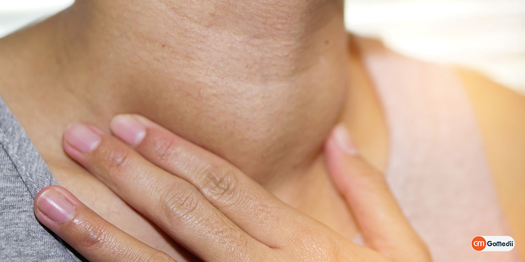 Thyroid Cancer in Women : A Combination of Genetic & Environmental Factors.