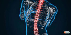 Spinal Stenosis Narrowing of the Spinal Canal