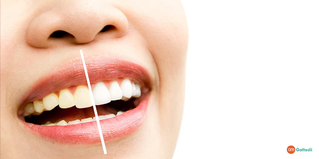 How to Get Rid of Yellow Teeth Know by The Dentist Dr. Praveen Kumar