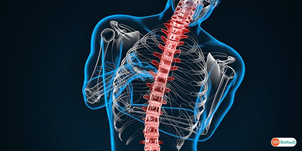 Know About Lumbar Spondylosis By Spine Surgeon Dr. Pramod Saini
