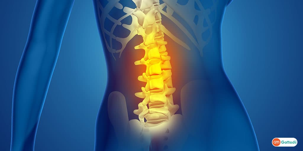 Know the First Signs of Ankylosing Spondylitis