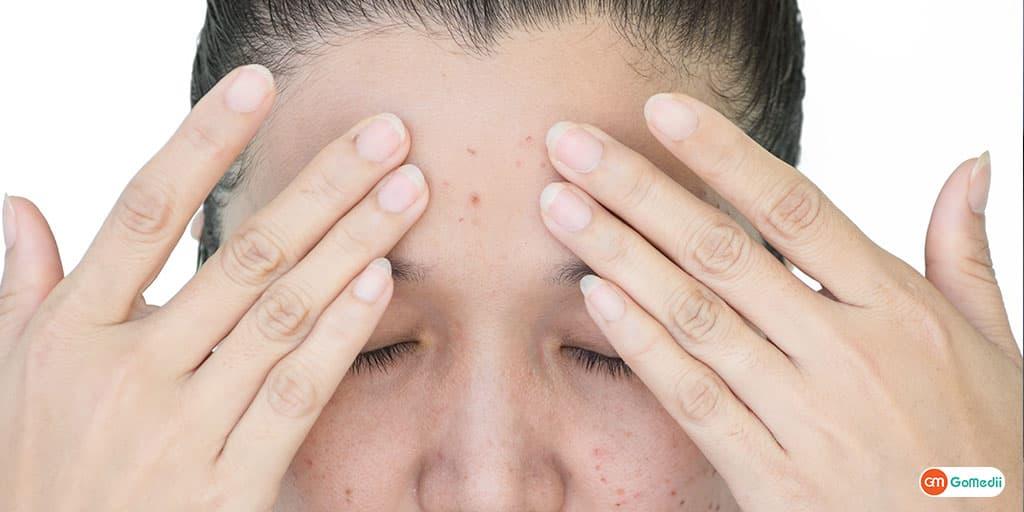 Skin Cancer The Dangers of Melanoma