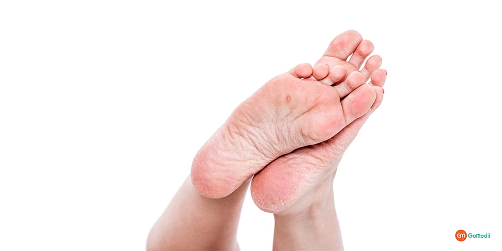 How to Effectively Treat an Infected Callus on Foot