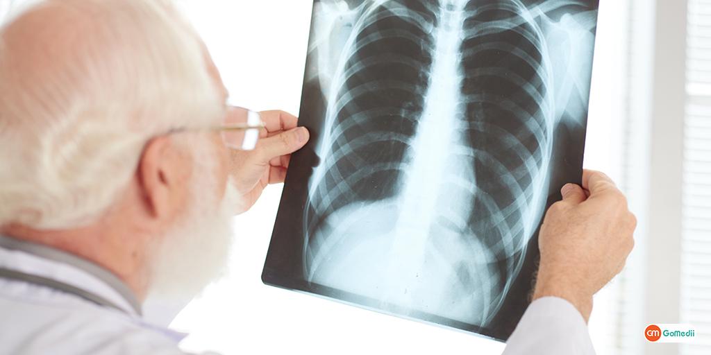 16% Increase in Tuberculosis Cases in India as Per Report.jpg