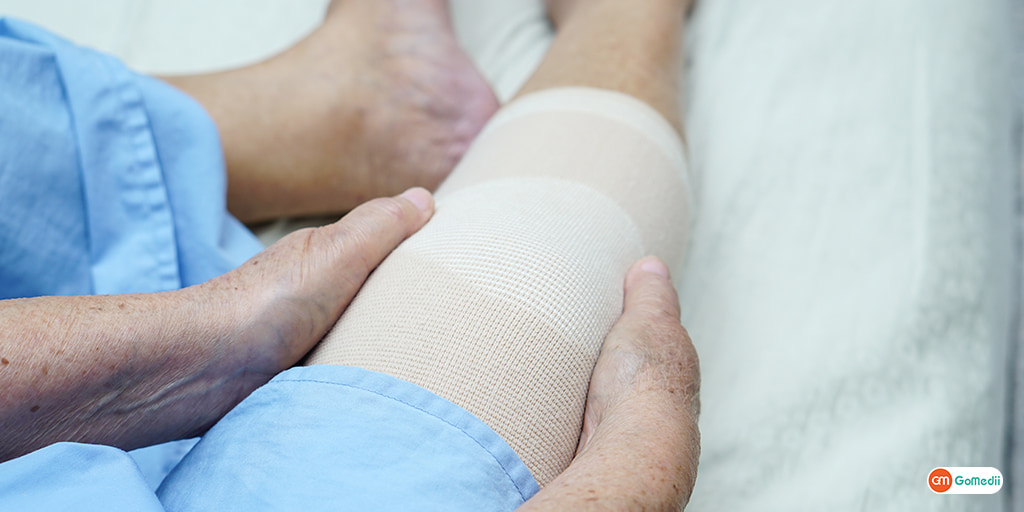 How Long Does a Joint Replacement Last