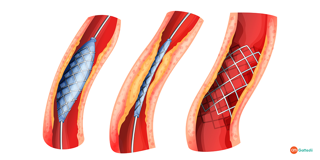 Stent Usage in Heart: How Does It Treat The Heart Diseases by Dr. Ajay Kumar