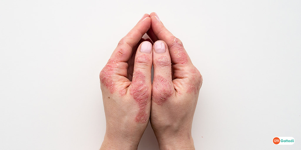 What are the Causes of Scabies