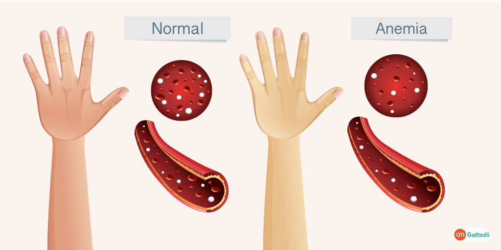 9 Most Common Symptoms of Anemia