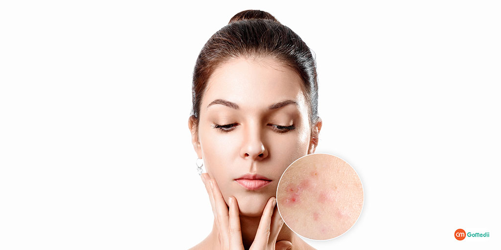 Clinical or Home Remedies See the Available Fungal Infection Treatments