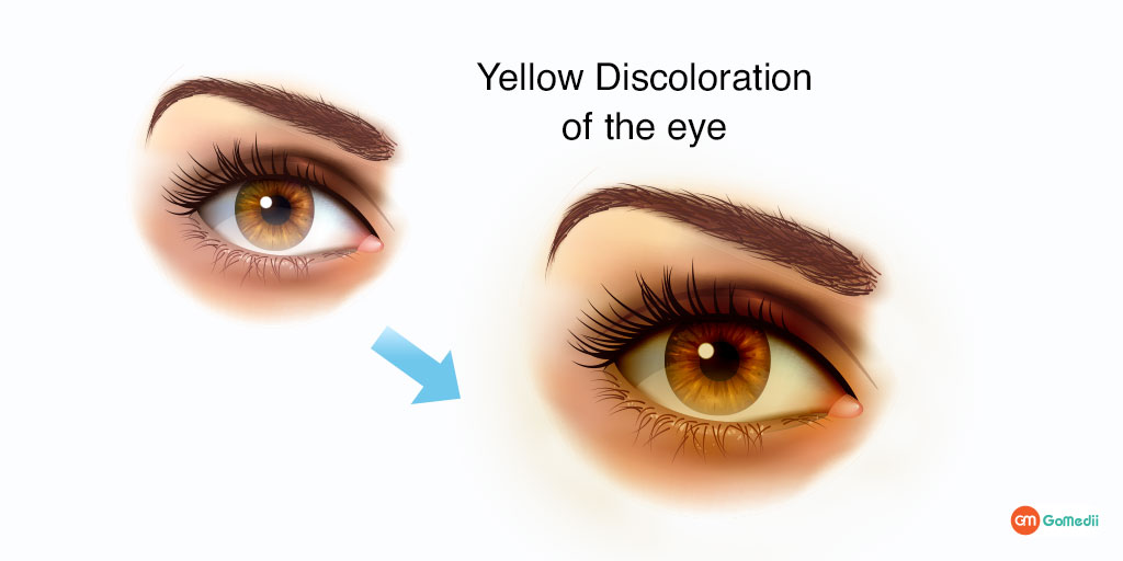 Jaundice – Causes, Symptoms, and Treatment