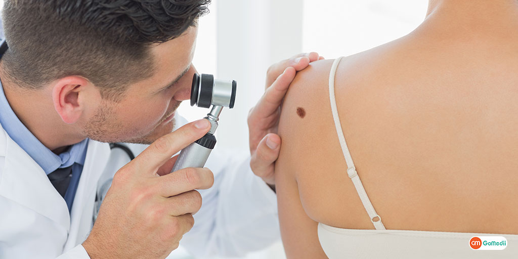 Difference Between Mole and Skin Cancer Be informed before it is late