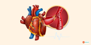 Myocarditis Know the Symptom, Causes, and Prevention