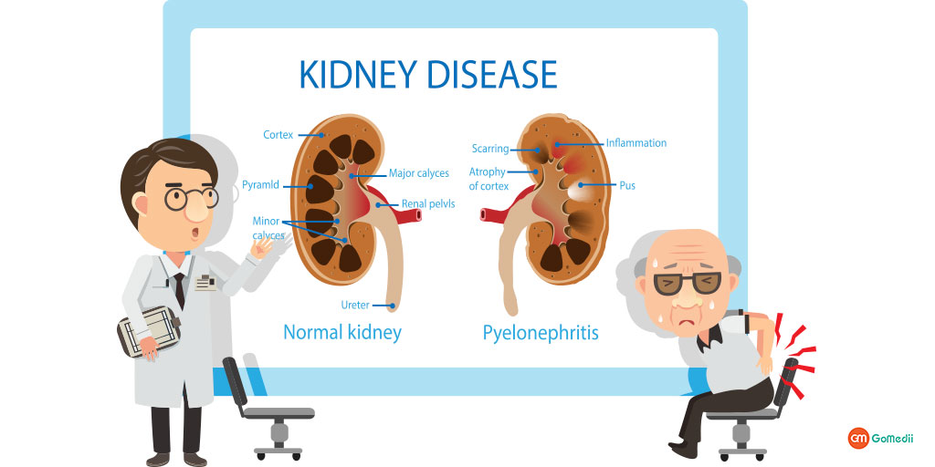 What Causes CKD Know the Causes and Prevent It.