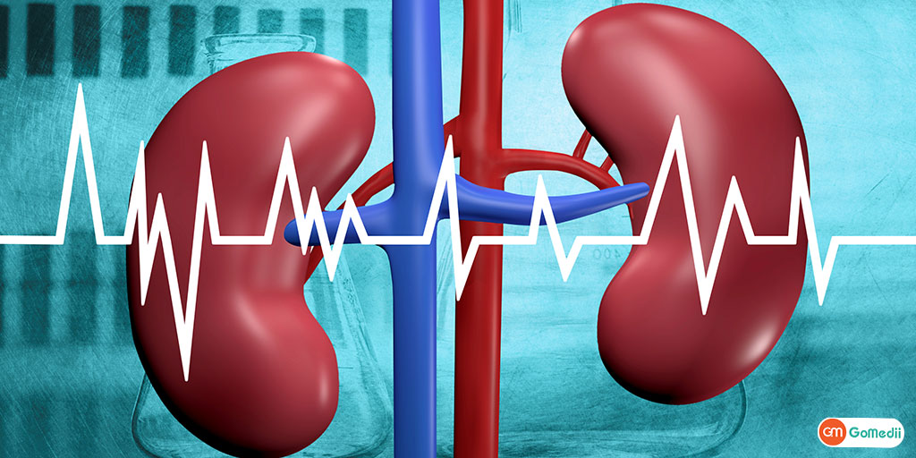 Kidney Disease and Diabetes- Link Between the Two Conditions