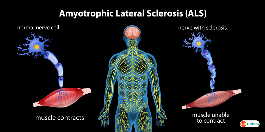 Amyotrophic lateral sclerosis A rare disease of nervous system
