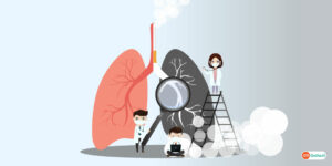 Smokers Must Get Regular Screening For Lung Cancer