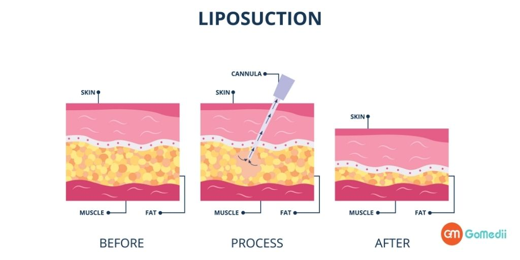 A New Lease on Life with Affordable Liposuction Treatment Costs in India, Liposuction Treatment Costs in India, Liposuction Treatment in India, gynecomastia, Preparing for the Liposuction Treatment, Types of Liposuction Treatment Procedures, Tumescent Liposuction, Ultrasound-Assisted Liposuction, Laser-Assisted Liposuction, cosmetic treatment in india