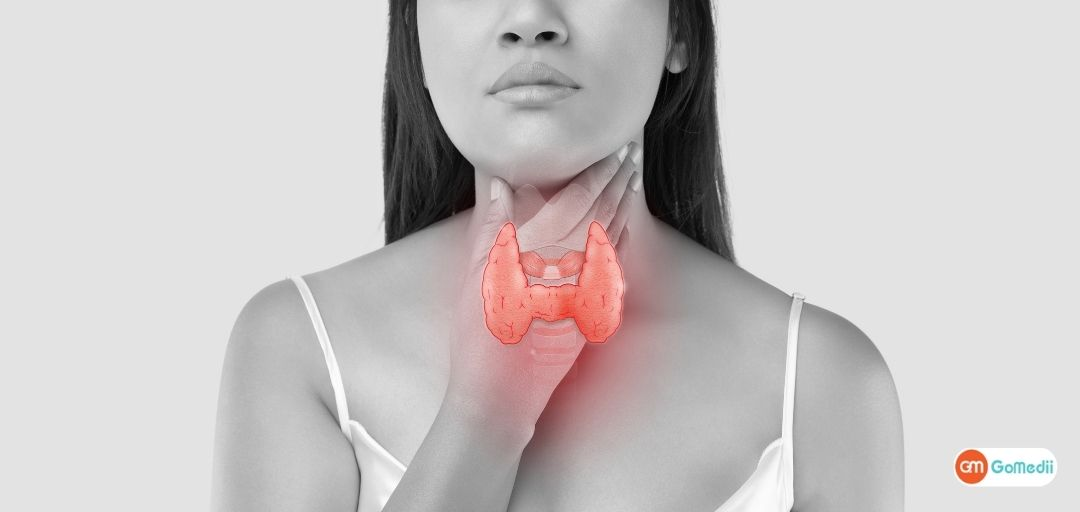 Pursue Life-Changing Thyroidectomy Treatment in India