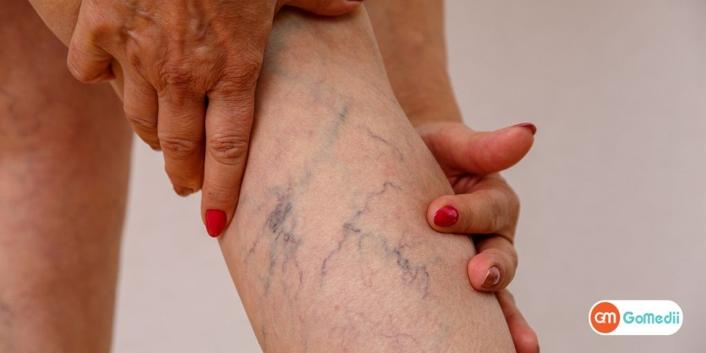 The Best in Its Class Varicose Veins Laser Treatment in India for International Patients