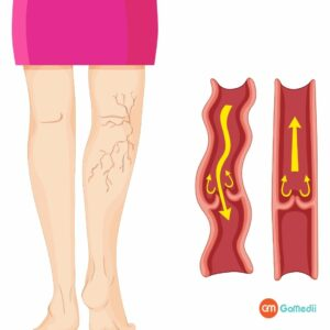 Varicose Veins Laser Treatment in India, symptoms of varicose veins, Causes Varicose Veins, Varicose Veins Laser Treatment Cost in India