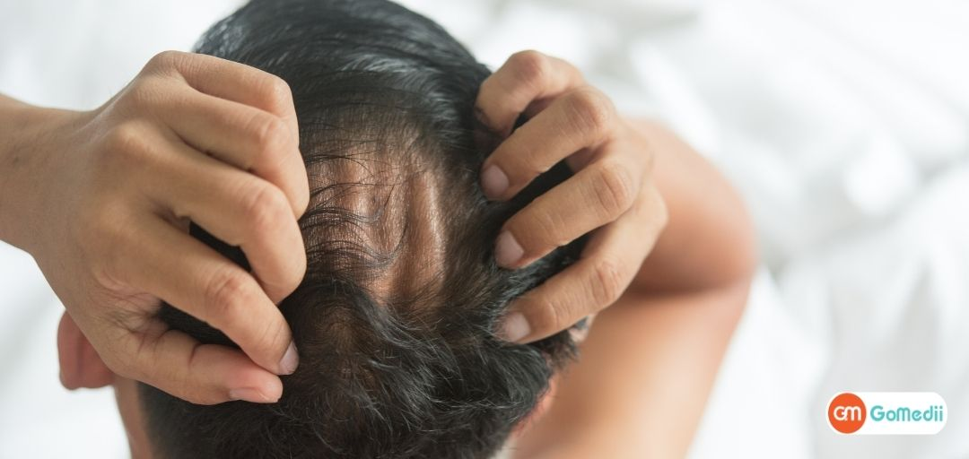 Hair and Scalp Treatment: Regain Your Confidence Post Hair-Loss