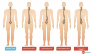 Scoliosis Treatment, Types of Scoliosis, Symptoms of Scoliosis, Sign of Scoliosis, Scoliosis Diagnosed, Spinal Fusion Surgery, Supportive Care for Scoliosis Management