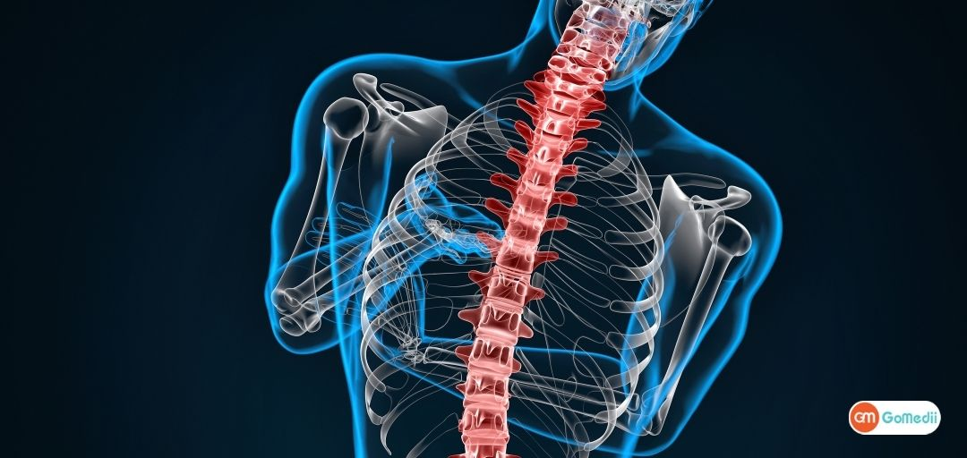 Scoliosis Types, Treatment, Symptoms, and Surgery