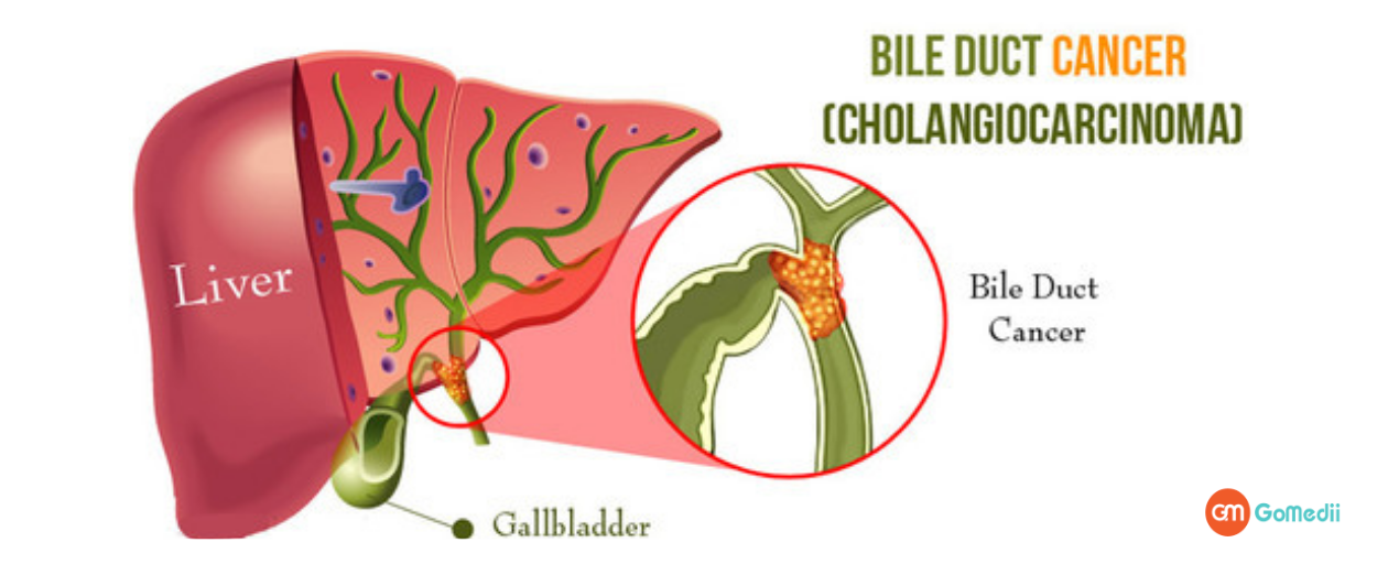 Get Aware About The Rare Bile Duct Cancer!- GoMedii