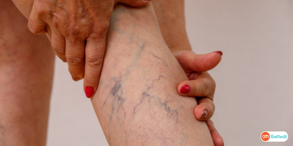 Know the Cause, Symptoms and Spider Vein Removal Treatment-GoMedii