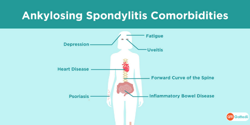 Ankylosing Spondylitis Cardiac, Ankylosing Spondylitis Cardiac Issues, Association of Ankylosing Spondylitis Cardiac Issues, complication of ankylosing spondylitis