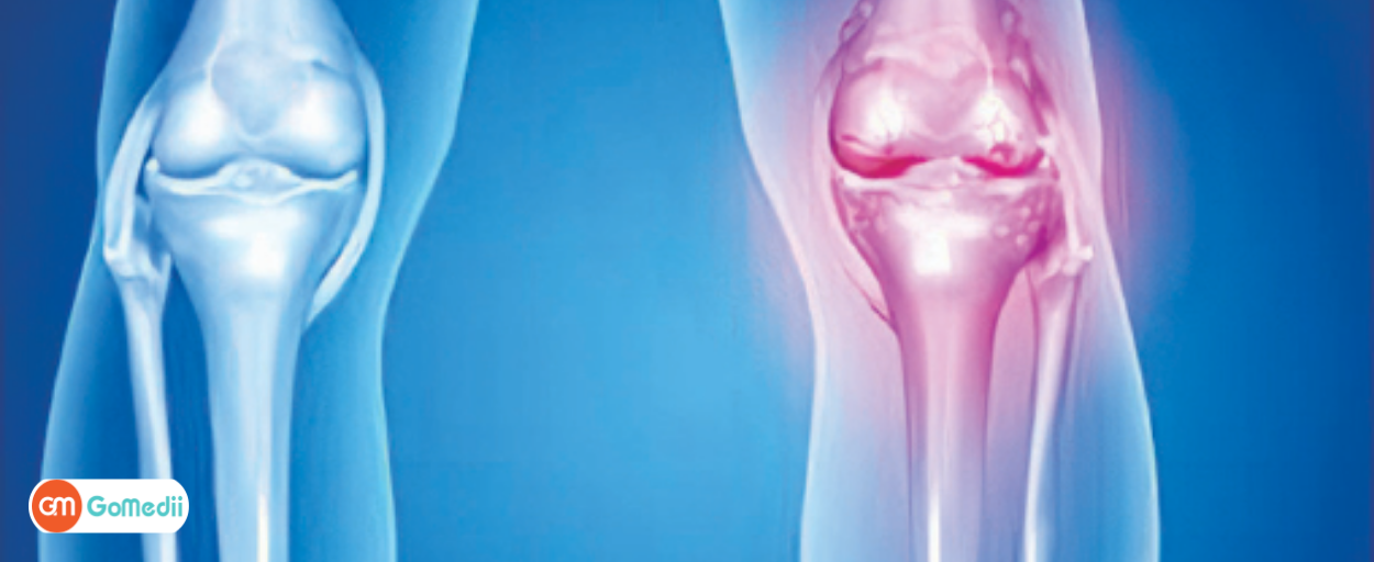 Waist infection due to a broken leg – GoMedii