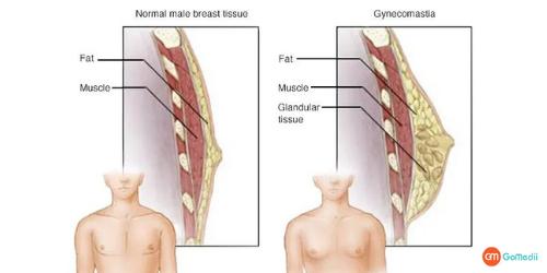 Gynecomastia Surgery, Liposuction, Mastectomy, Gynecomastia Surgery Cost, Gynecomastia Surgery Cost In Delhi, gynecomastia hospital