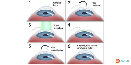 LASIK eye surgery, Laser Eye Surgery A Permanent Solution, LASIK Eye Surgery Procedure, Cost Of the LASIK Surgery