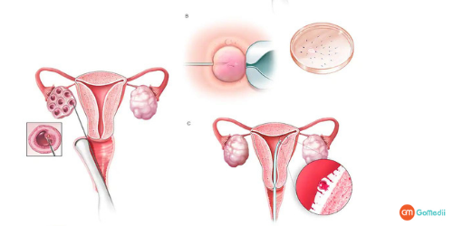 IVF Treatment Cost In Delhi, IVF Treatment In Delhi, Ovulation induction, Egg retrieval, Fertilization, Embryo transfer, Doctor IVF Treatment In Delhi, IVF Treatment Packages In Delhi, IVF Hospitals In Delhi