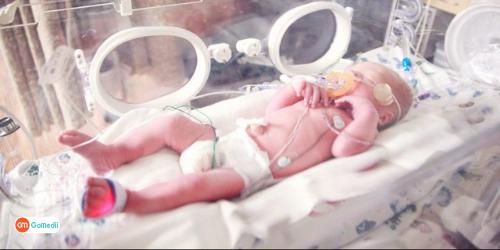 Neonatal Sepsis Treatment in Turkey, neonatal sepsis symptoms, causes of neonatal sepsis, neonatal sepsis treatment, complication of neonatal sepsis