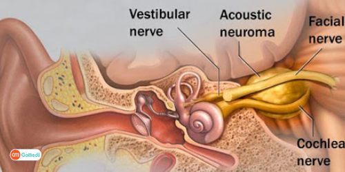 Treatment for Acoustic Schwannoma In Indian Hospitals, Acoustic Schwannoma Treatment In India, Vestibular Schwannoma Surgery In India, Cost of Treatment for Acoustic Schwannoma In Indian, survival rate for acoustic neuroma
