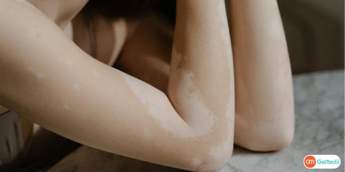 Vitiligo Treatment In Delhi, Vitiligo Surgery Cost In Delhi, Vitiligo Treatment In India, Vitiligo Specialist In Delhi