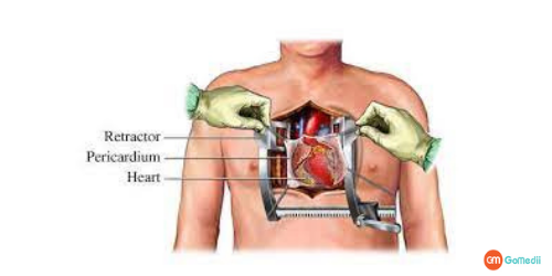 Open Heart Surgery Prices In Delhi, Open Heart Surgery Hospitals In Delhi, Open Heart Surgery Cost In India, Open Heart Surgery Cost In AIIMS Delhi, Cost Of Bypass Surgery In Max Hospital Delhi, Recovery Time After The Open Heart Surgery, Survival Rate Of Open Heart Surgery
